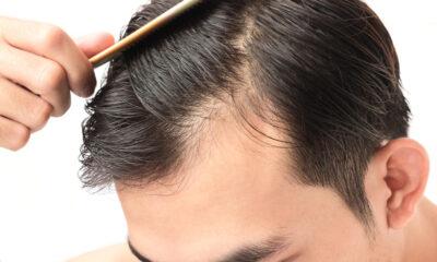 Saçlarımız neden dökülür? İşte saç dökülmesinin 8 nedeni…