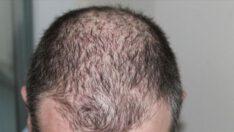 Kovid-19 sonrası saç dökülmelerinde artış…